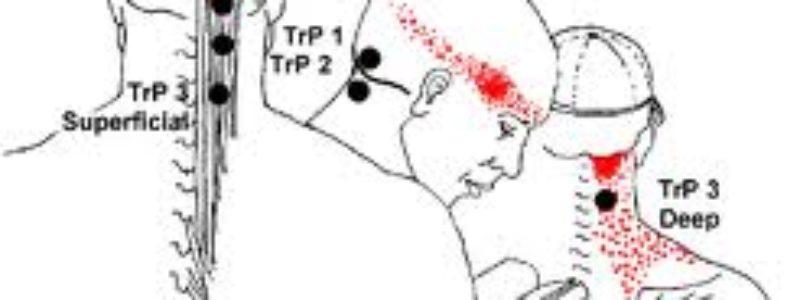 Dor de cabeça tensional