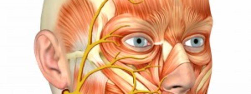 7 par craniano paralisia de bell