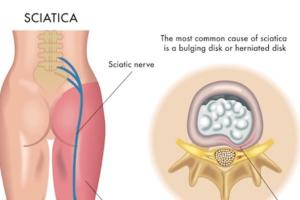 tratamento dor ciatica