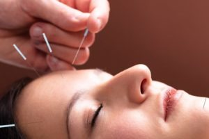 acupuntura e migraina